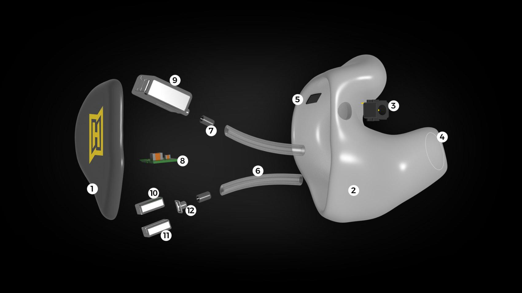 Aufbau eines HEAROS PRO 3 mit all seinen technischen Komponenten.